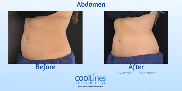 CoolLines Palm Beach CoolSculpting and CoolTone, Palm Beach Hamilton Aesthetics