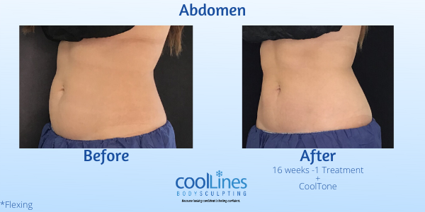 CoolSculpting results, before and after coolsculpting, cooltone, Palm Beach CoolSculpt